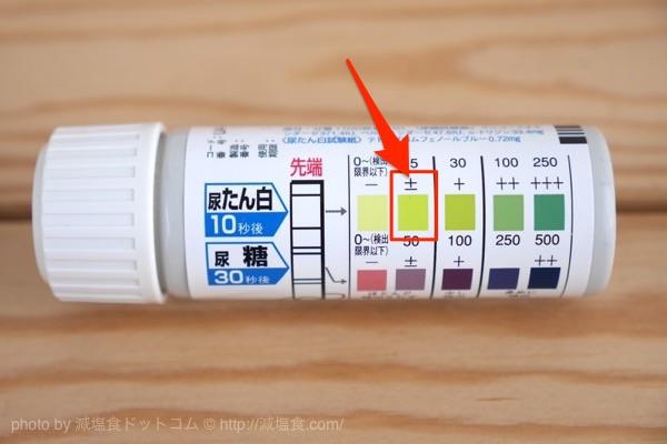 尿検査 蛋白 プラスマイナス
